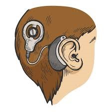 Cochlear implant graphic.